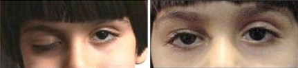 Ptosis - Right Eye