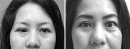 Large-angle Sensory Esotropia - Right Eye